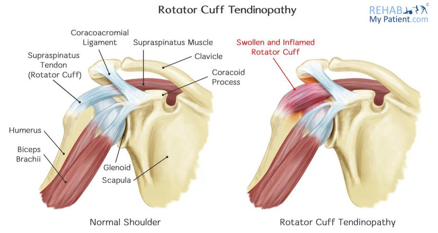 rotator cuff tendinopathy