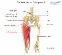 Femoral Nerve Entrapment