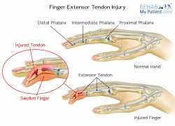Finger Extensor Tendon Injury