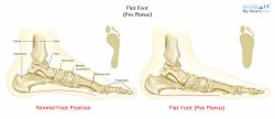 Flat Foot (Pes Planus)