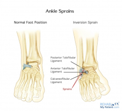 Inversion Sprain of the Ankle