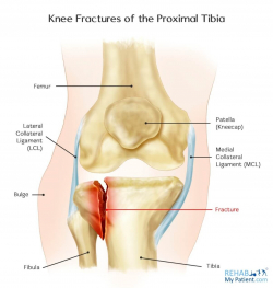 Knee Fractures of the Proximal Tibia