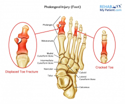 Phalangeal Injury (Foot)