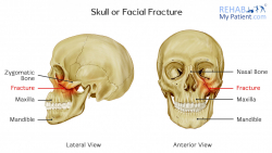 Skull or Facial Fracture