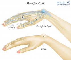 Ganglion Cyst of the Wrist and Hand