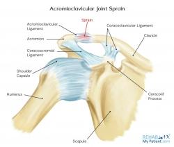 Acromioclavicular Joint Sprain