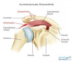 Acromioclavicular Osteoarthritis