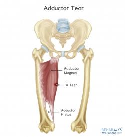 Adductor Tear