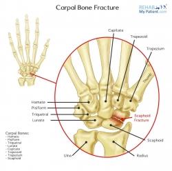 Carpal Bone Fracture