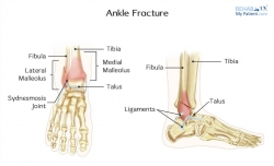 Ankle Fractures in Children