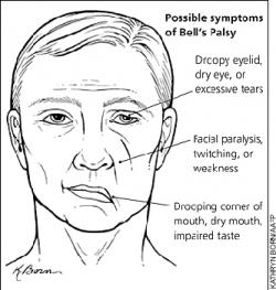 Facial Palsy (Bell 's Palsy)