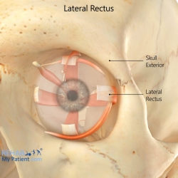 Lateral Rectus