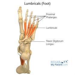 Lumbricals (foot)