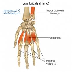 Lumbricals (hand)