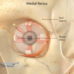 Medial Rectus