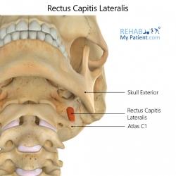 Rectus Capitis Lateralis