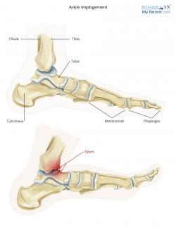 Ankle Impingement (Anterior)