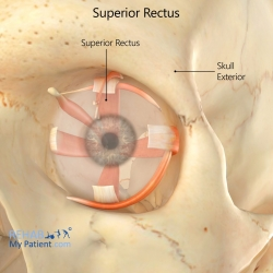Superior Rectus