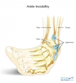 Ankle Instability