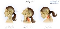 Whiplash and Whiplash Associated Disorder (WAD)