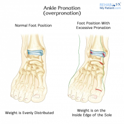 Ankle Pronation (Overpronation)