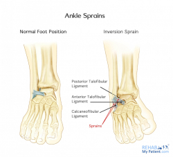 Ankle Sprains (Medial and Lateral)