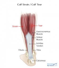 Calf Strain / Calf Tear