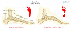 Cavus Foot (High Arches)