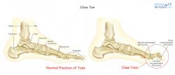Claw Toe