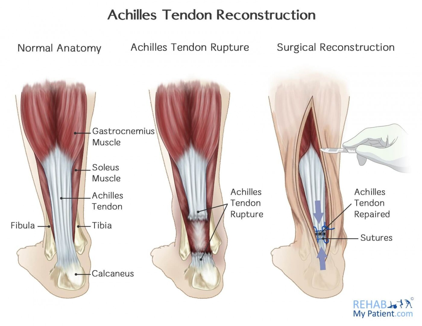 achilles tendon rupture | rehab my patient, Human Body