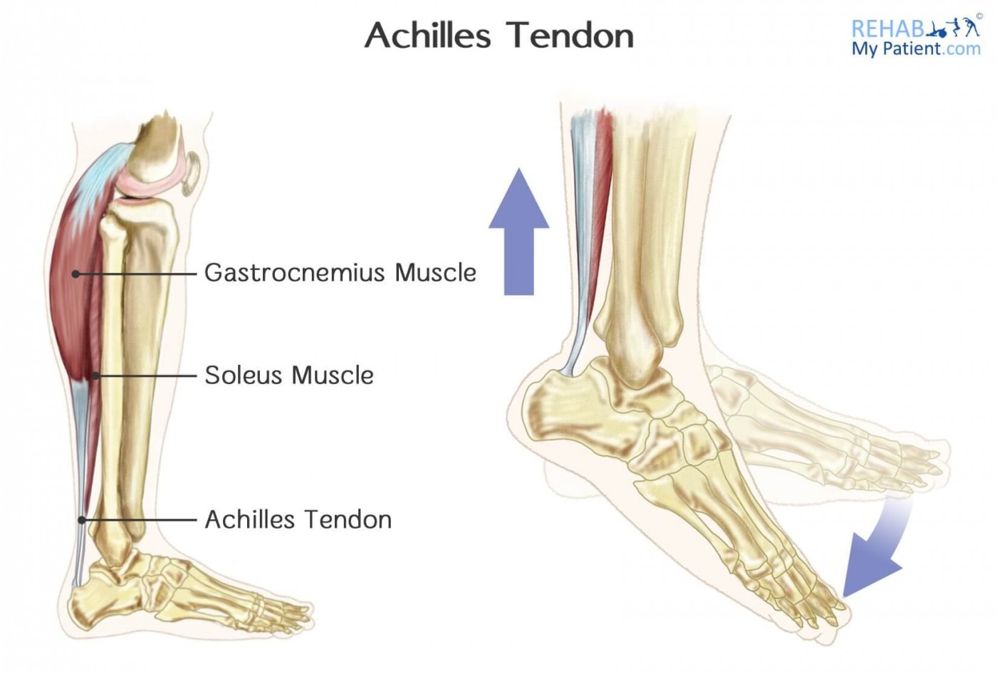 Achilles Tendon Rupture | Rehab My Patient