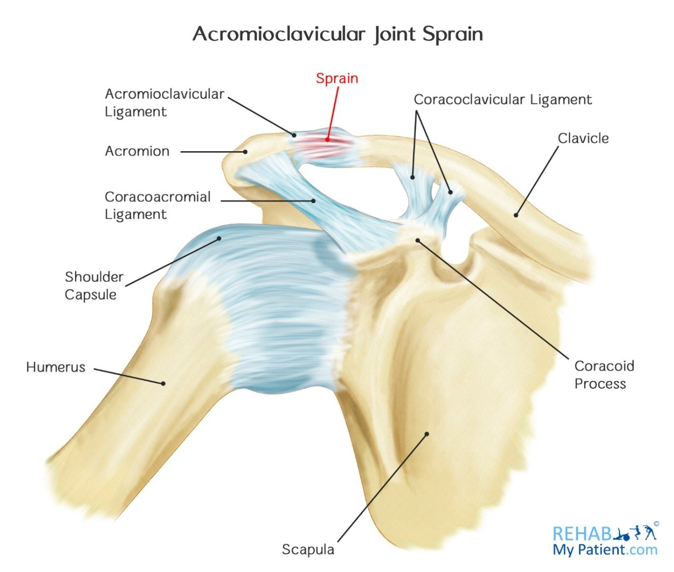 Acromioclavicular Joint Sprain | Rehab My Patient