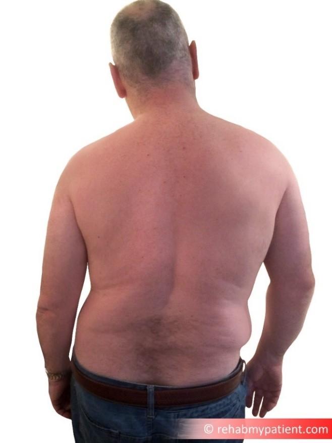 Acute Lumbar Scoliosis