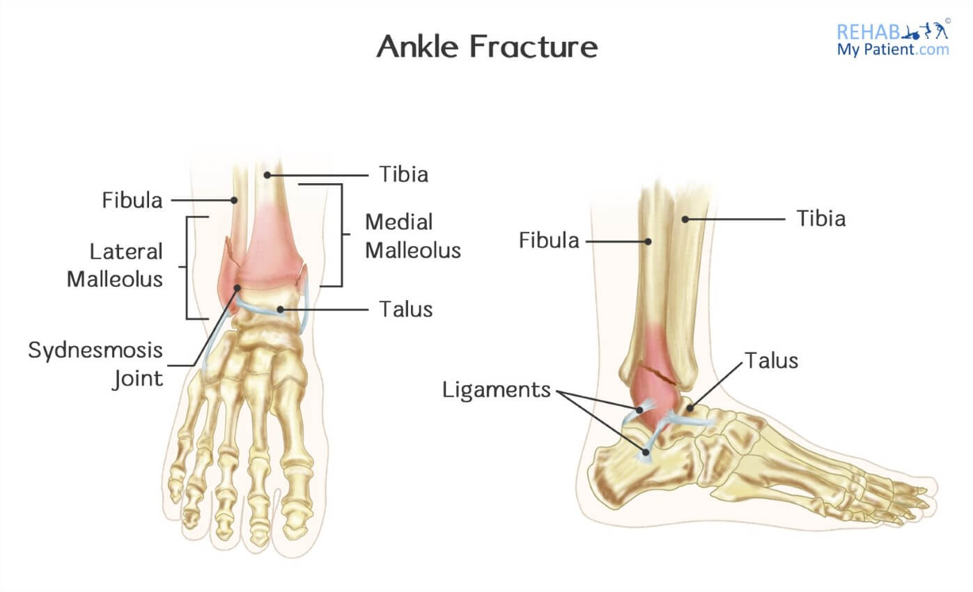 Ankle Fractures in Children | Rehab My Patient