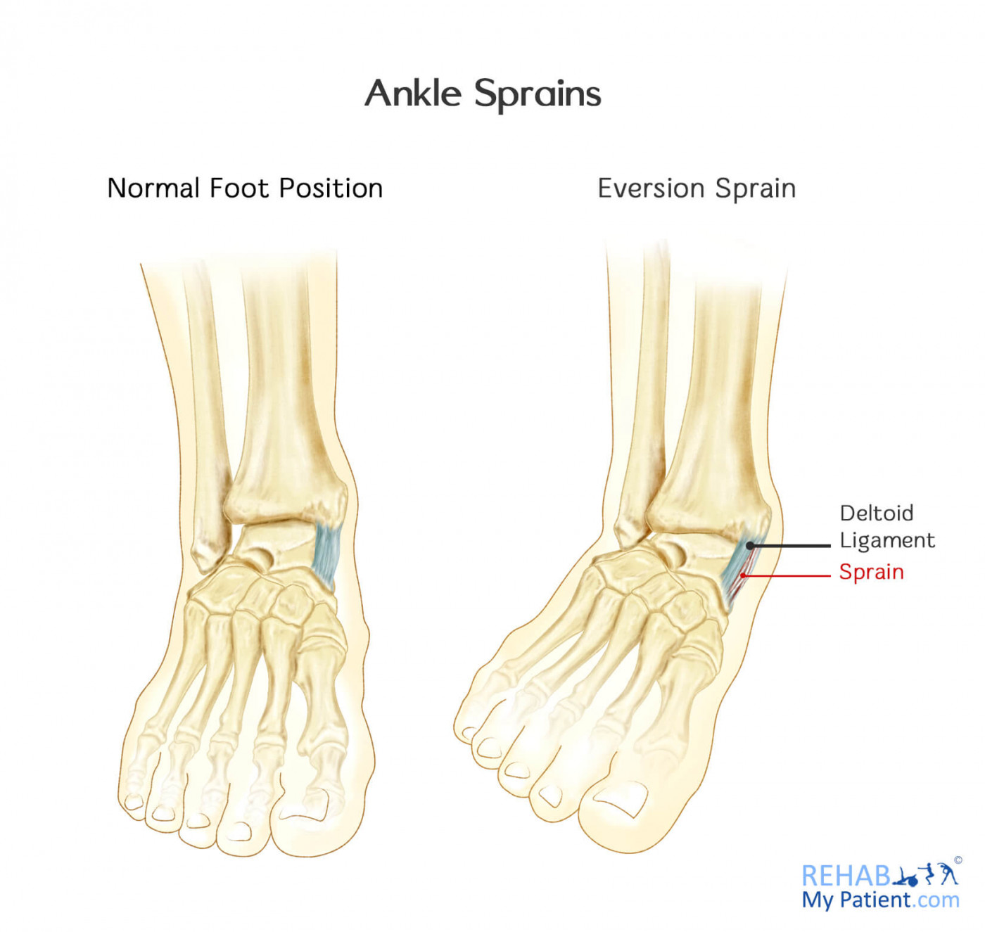 Ankle Sprains (Medial and Lateral) | Rehab My Patient
