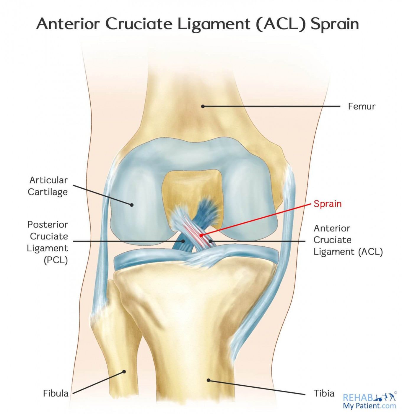 Anterior Cruciate Ligament Acl Sprain Rehab My Patient