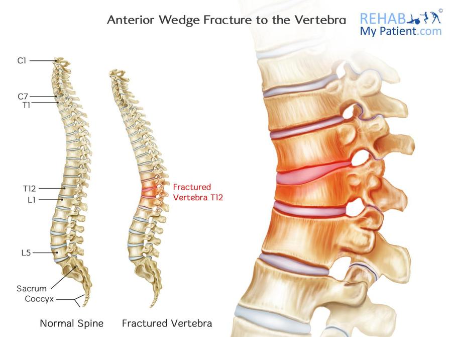 anterior wedge fracture vertebra