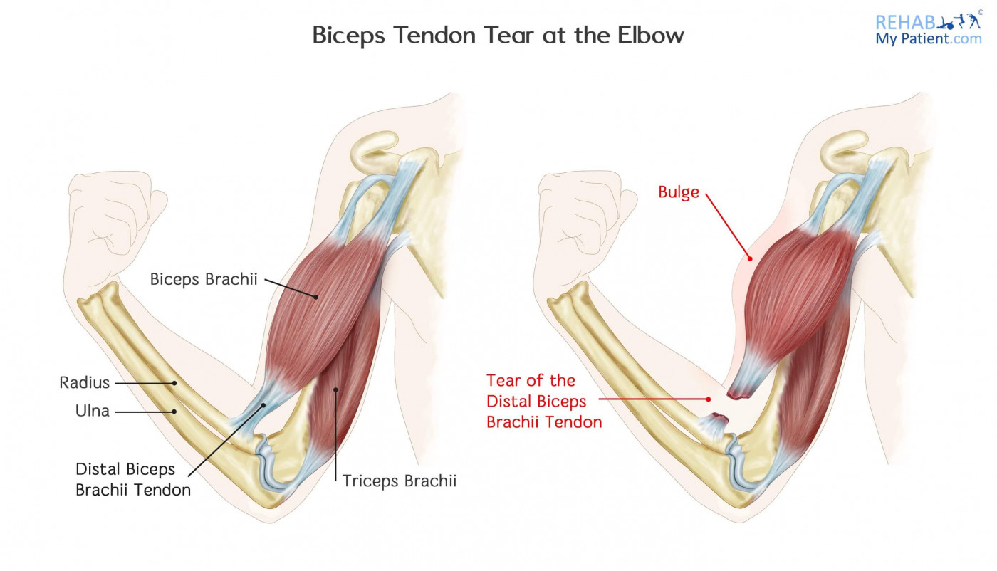 Biceps Tendon Tear At The Elbow Rehab My Patient