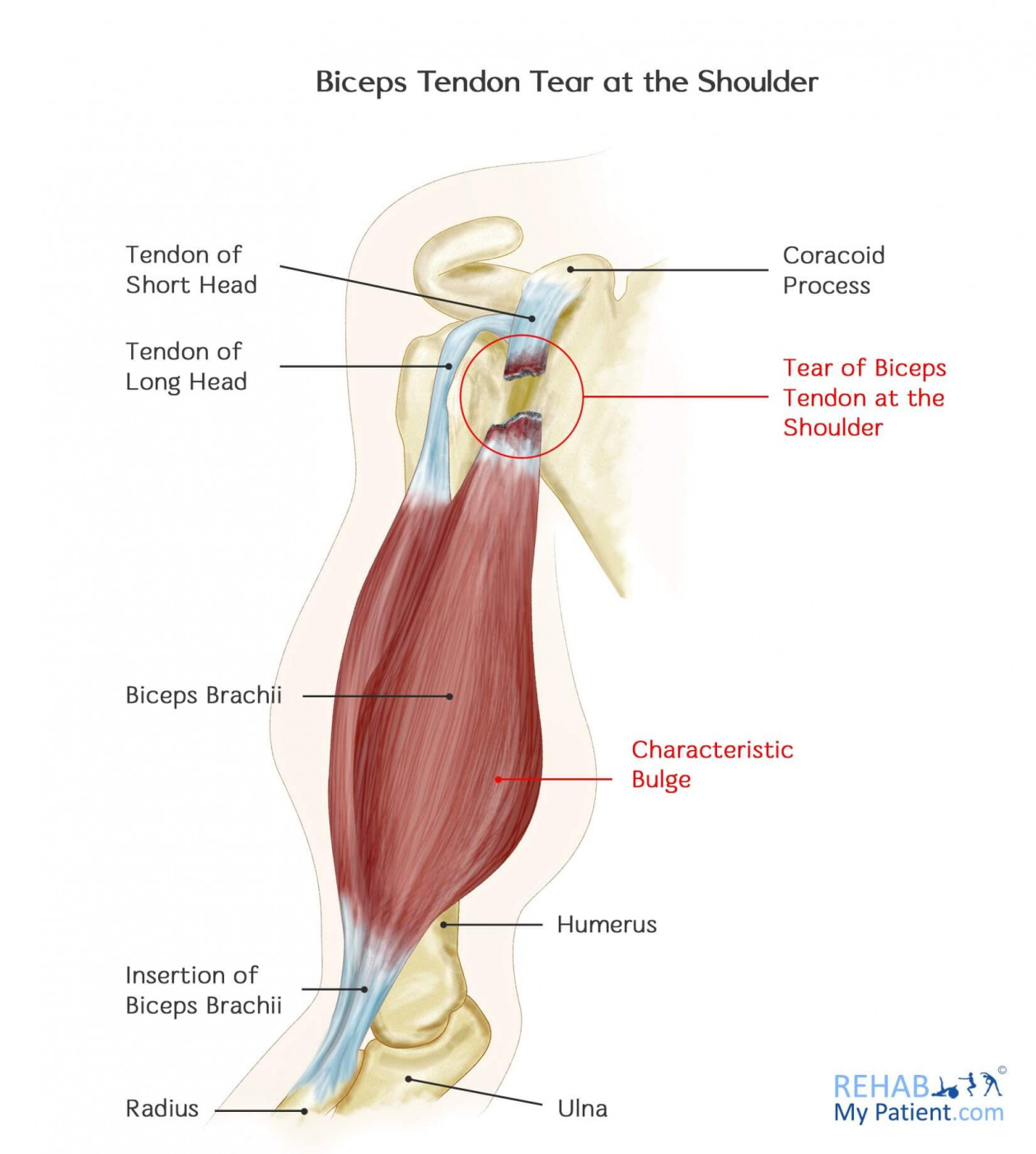 Biceps Tendon Tear At The Shoulder Rehab My Patient