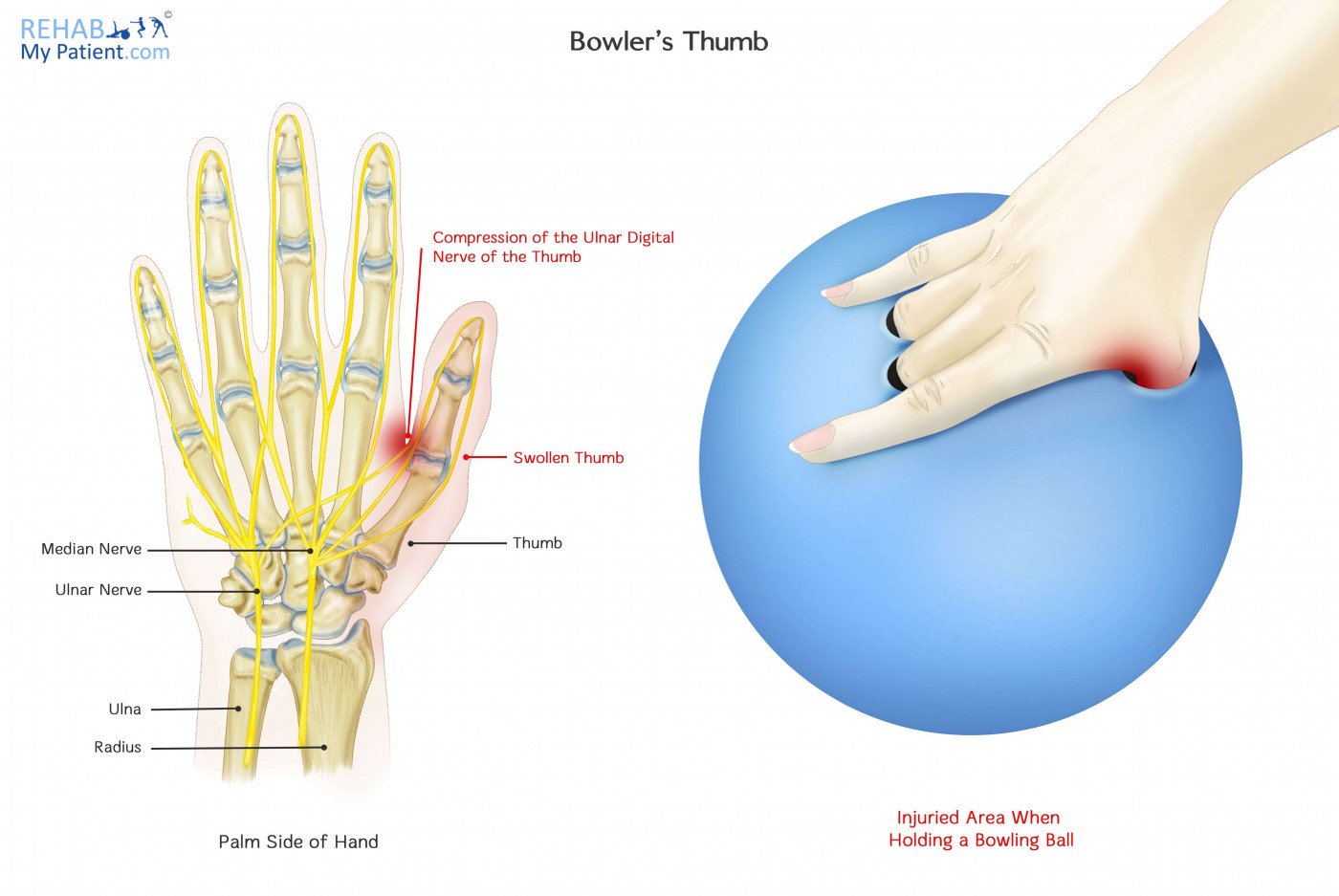 Bowler\'s Thumb | Rehab My Patient