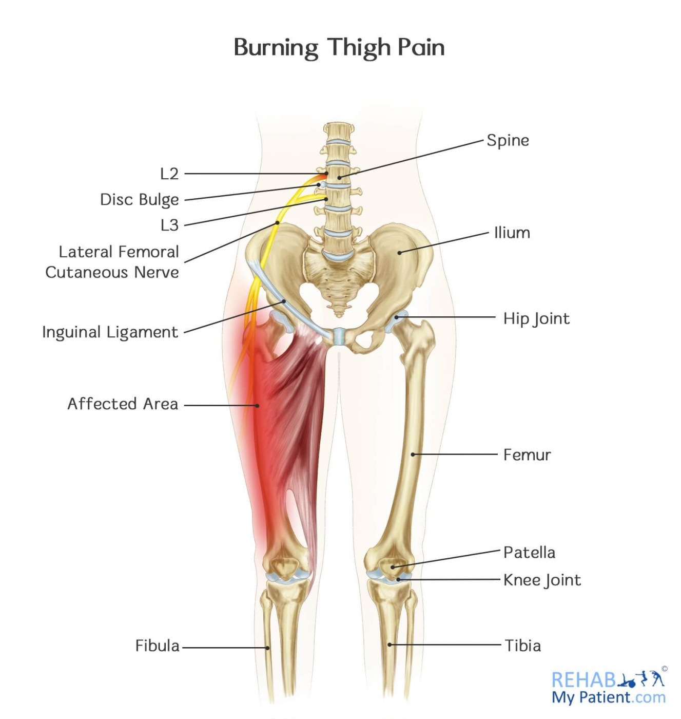 Burning Thigh Pain | Rehab My Patient