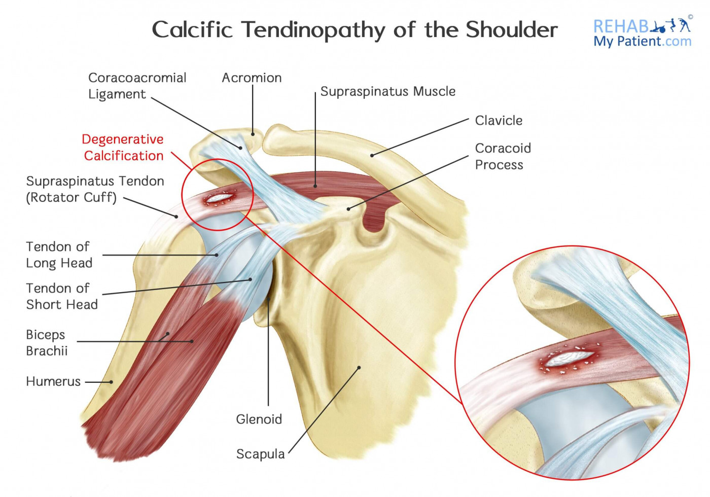 Calcific Tendinopathy of the Shoulder | Rehab My Patient