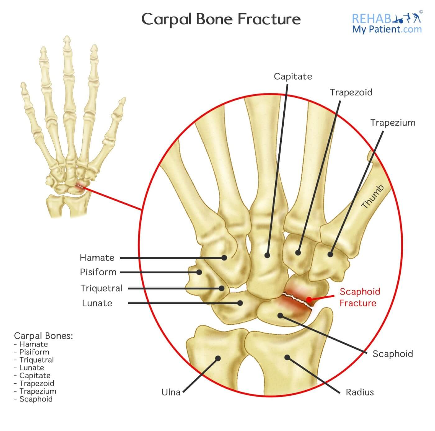 carpal bone fracture | rehab my patient, Sphenoid