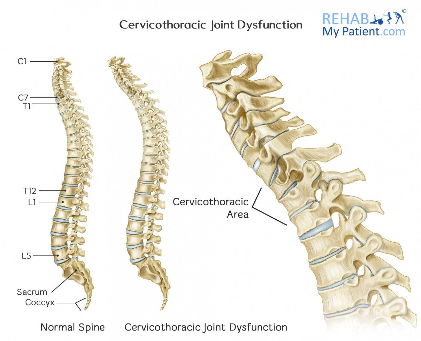 Cervicothoracic Joint Ct Dysfunction Rehab My Patient