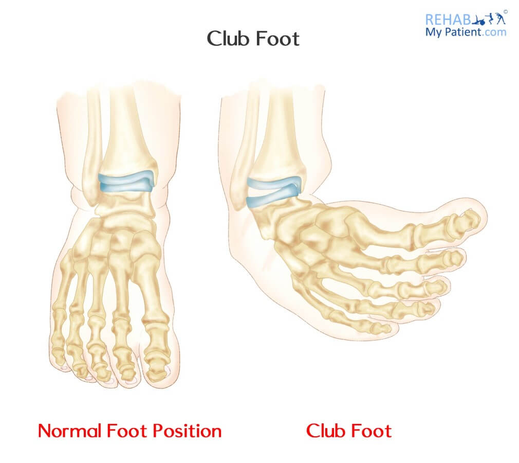 Club Foot | Rehab My Patient