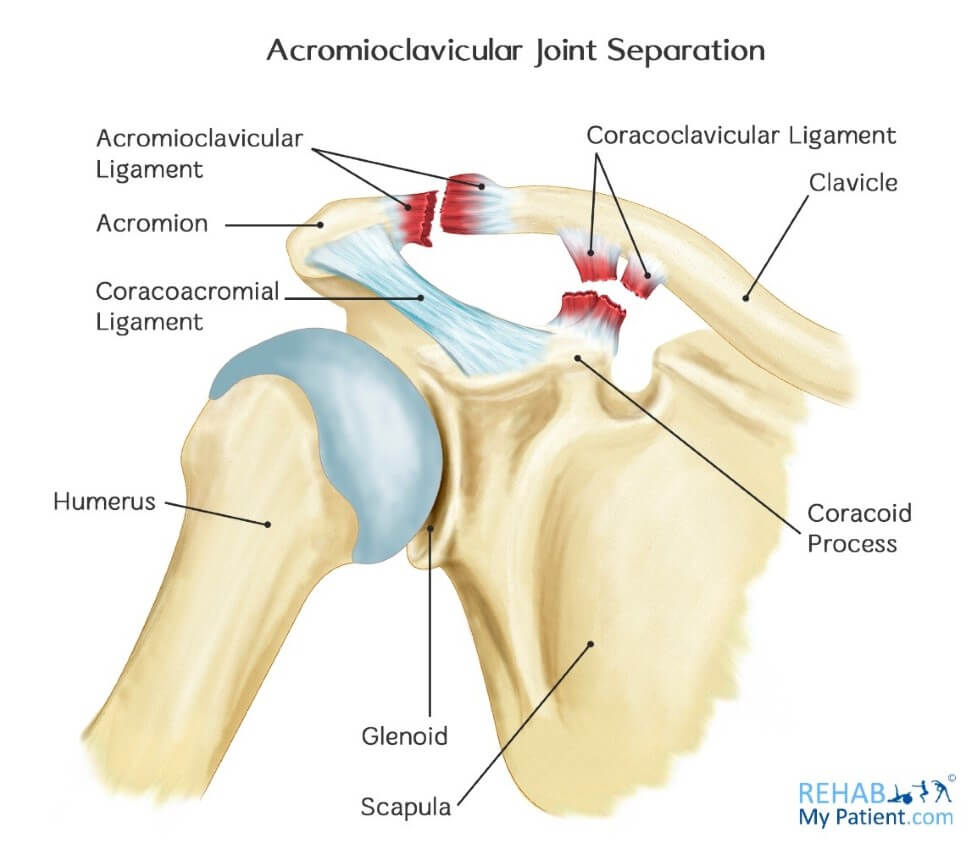 acromioclavicular joint separation | rehab my patient, Human Body