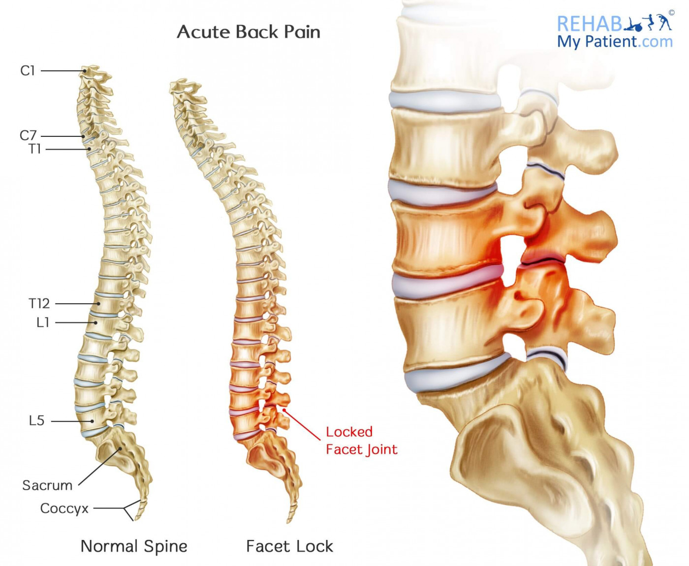 Acute Back Pain | Rehab My Patient