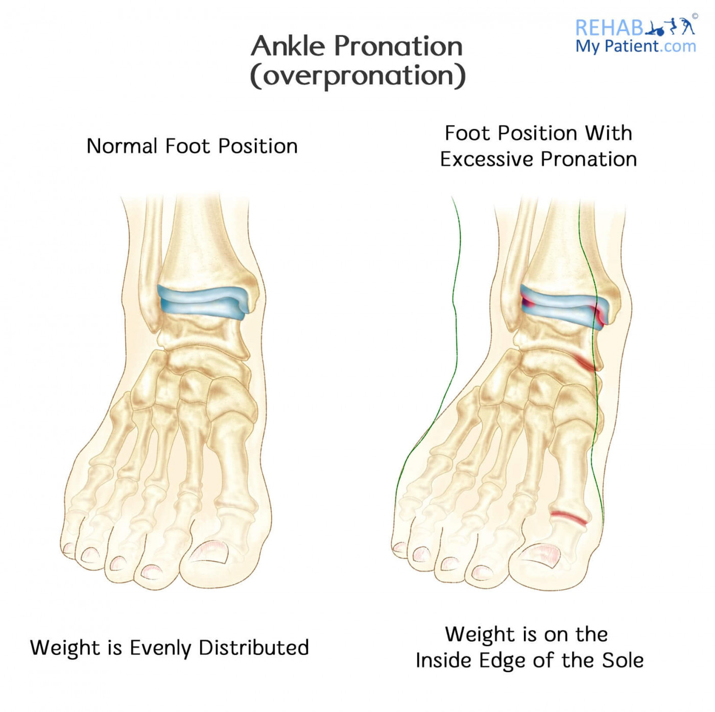 Ankle Pronation Overpronation Rehab My Patient
