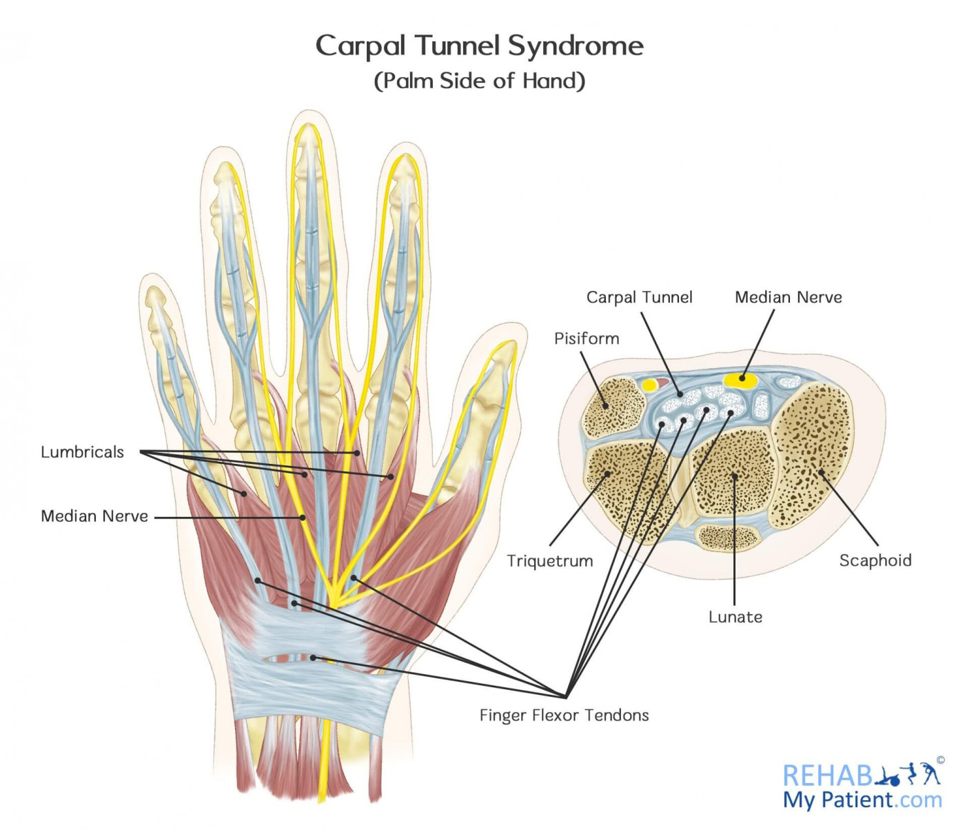 Carpal Tunnel Syndrome | Rehab My Patient