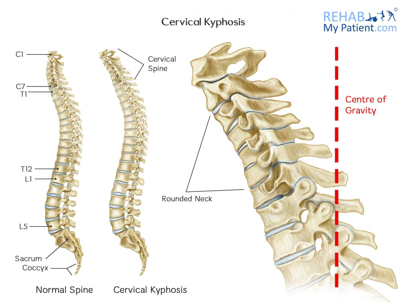Cervical Kyphosis Rehab My Patient